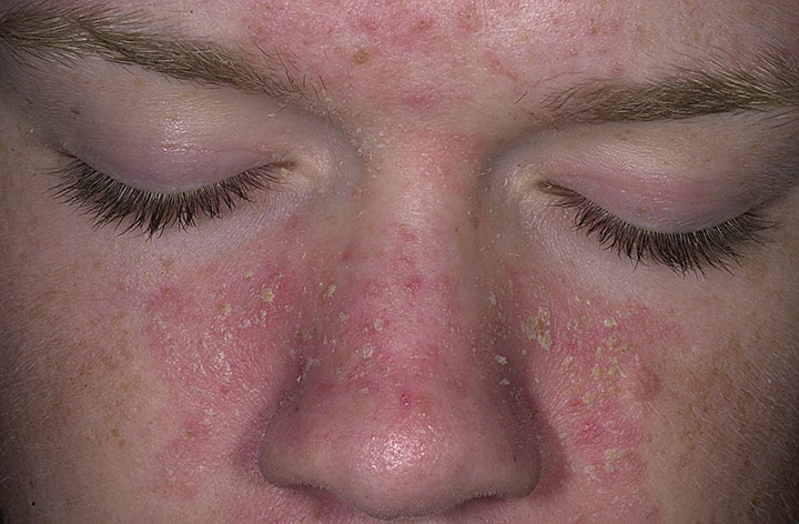 The Seborrheic Dermatitis Blog | solutions for red, itchy ...